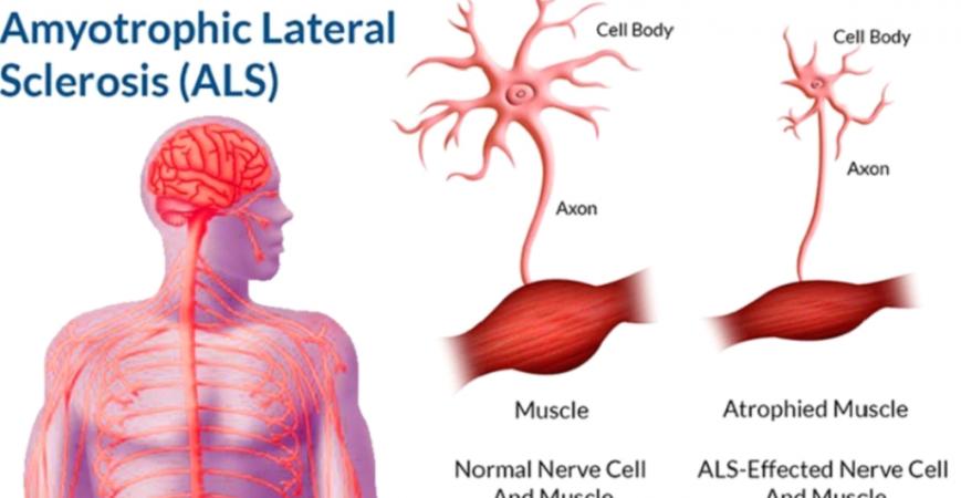 CBD και Αμυοτροφική Πλευρική Σκλήρυνση (ALS)